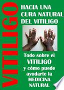 Cura para el vitiligo