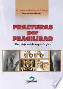 Fracturas por fragilidad