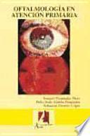 Oftalmología en atención primaria